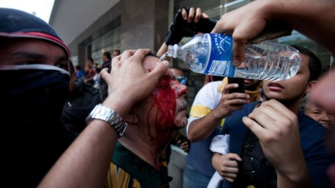 Protestors help wash blood off the face of an injured man (Photo: Alejandro Cegearra- AP)